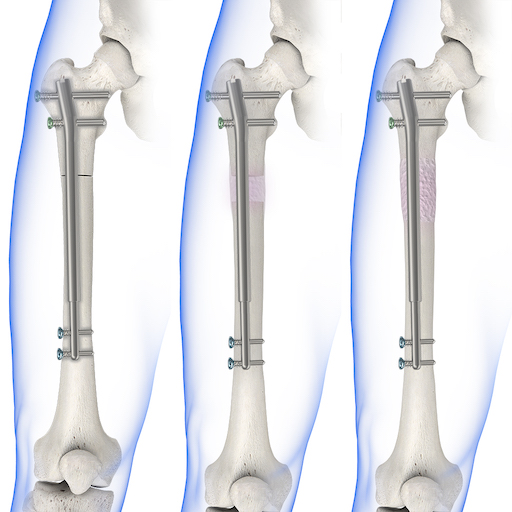 What Are The Risks Of Limb Lengthening Surgery?